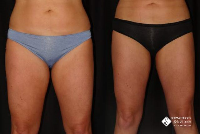CoolSculpting Women's Inner Thigh Age 34