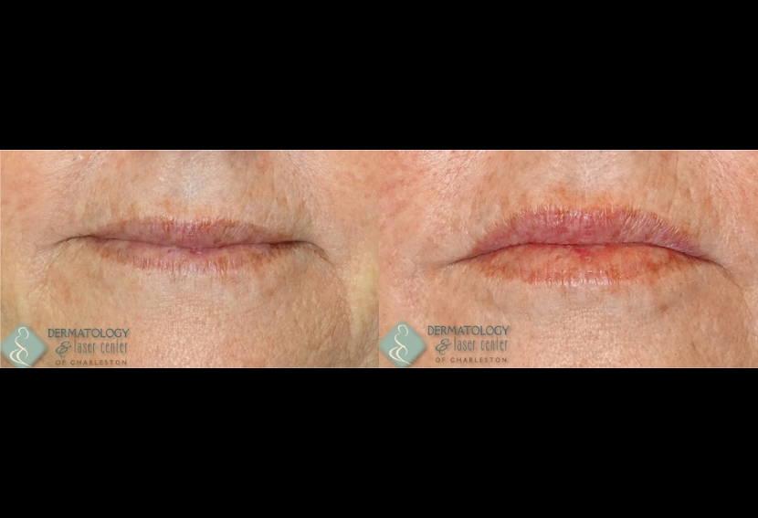 Exilis 360 (4x) Before & After
