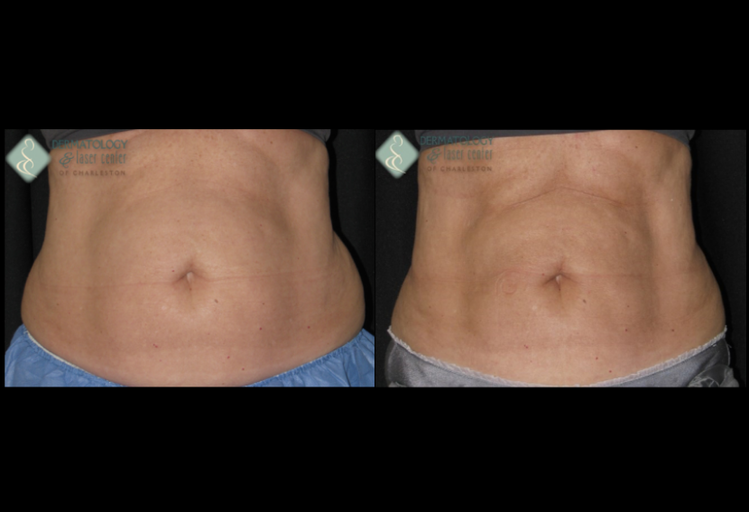 Coolsculpting Women's Upper and Lower Abdomen Age Early 40s Before & After