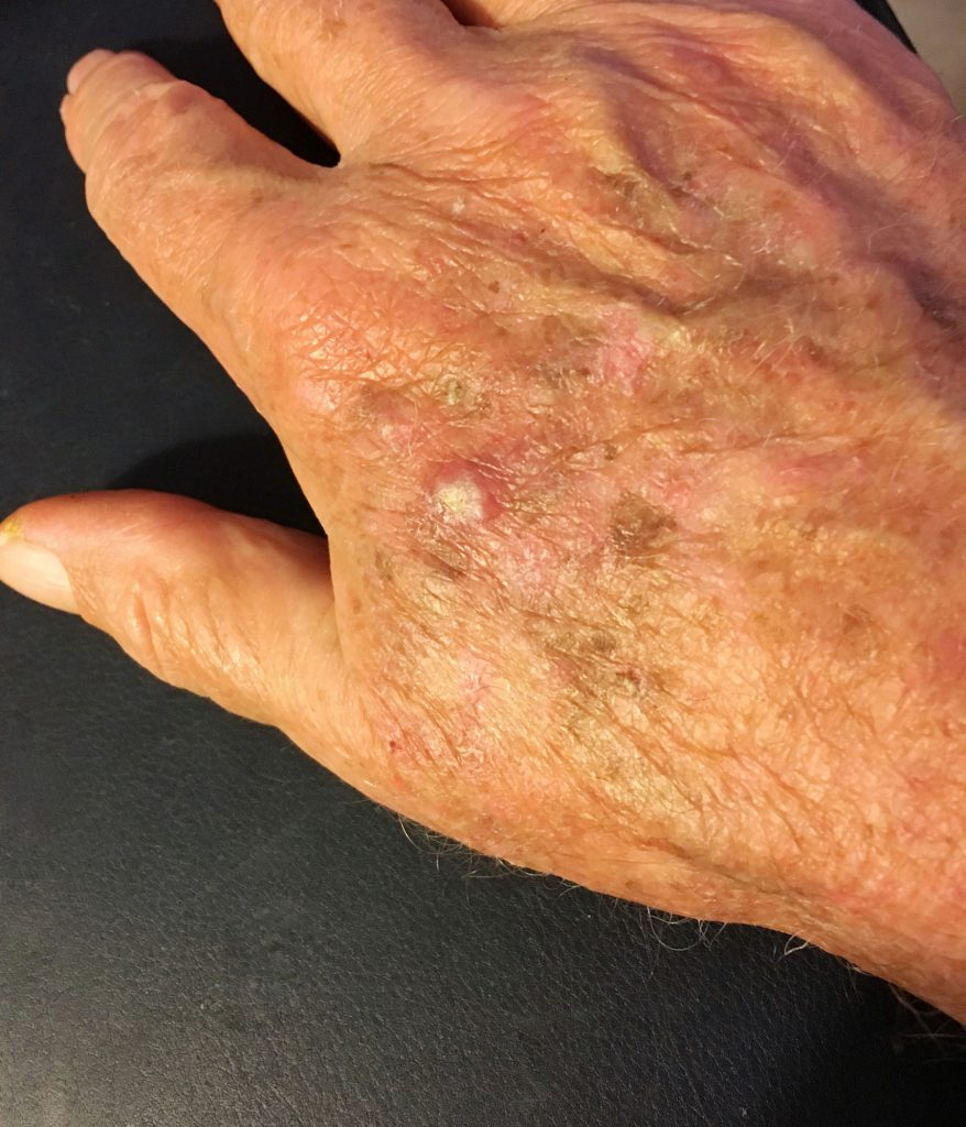 Actinic Keratosis (pre-cancers)