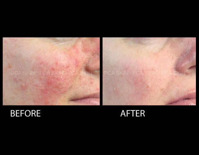 Rosacea Before & After