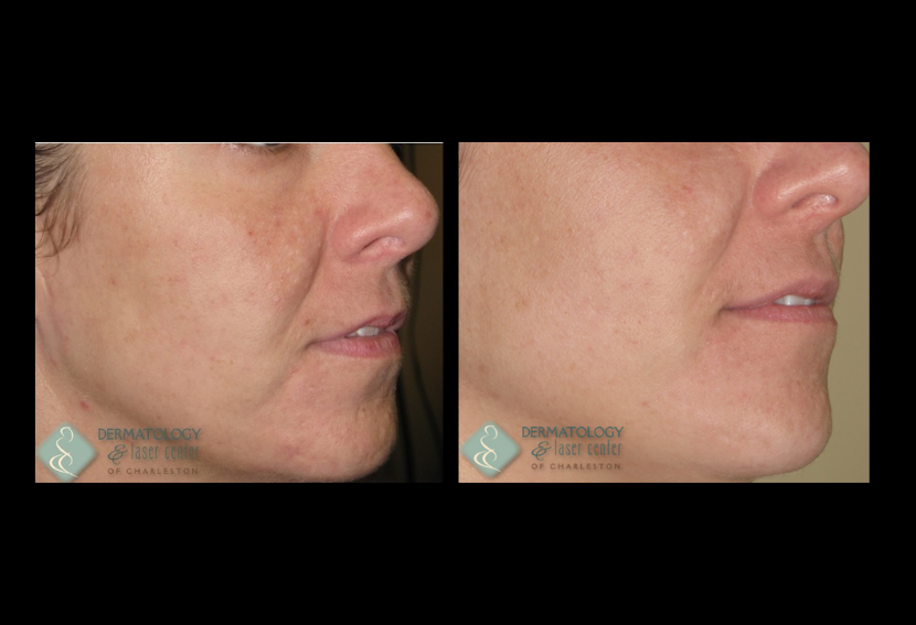 Acne Scarring Improved By Non Ablative Fractional Resurfacing Before & After