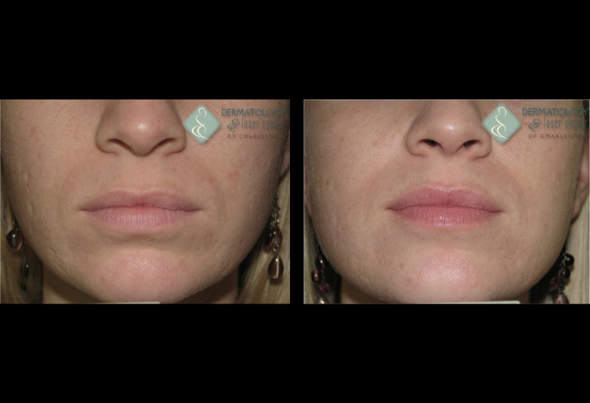 Acne Scarring Improved By Non Ablative Fractional Resurfacing