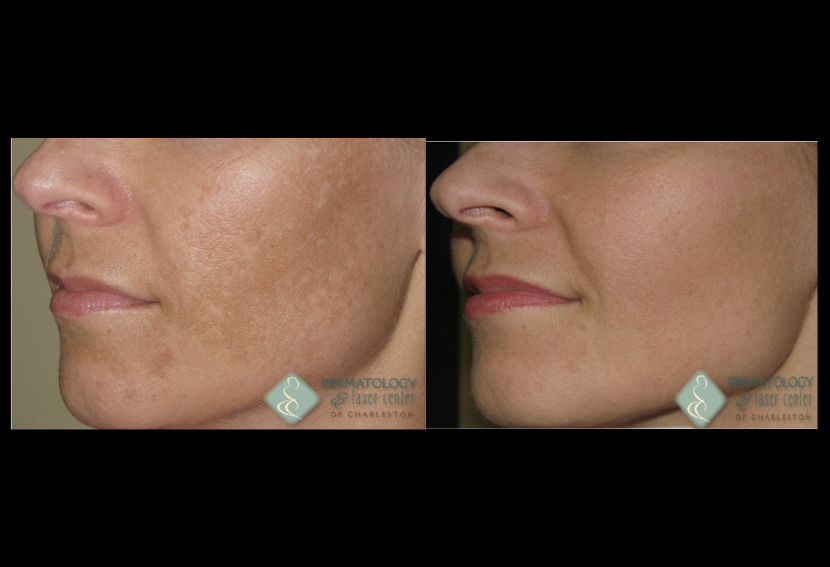 Non Ablative Fractional Resurfacing Before & After